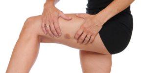 Bruises: natural remedies